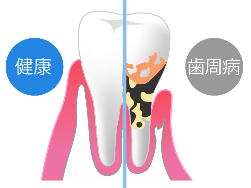歯周病に気付くポイント