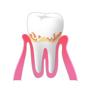 歯周病 軽度・中度時の治療