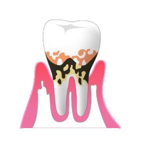 歯周病 重度時の治療